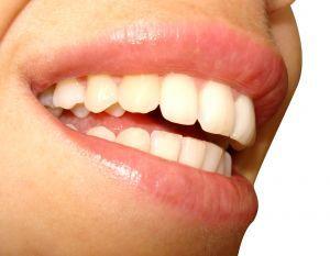 Как избавиться от желтизны зубов